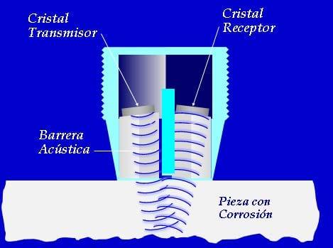 ultrasonido-convencional-02